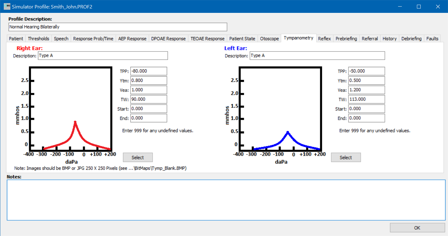 Simulator Profile Tympanometry Setup tab